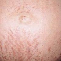 gebelikte cilt hastalıkları